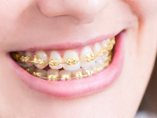 Covered for Braces