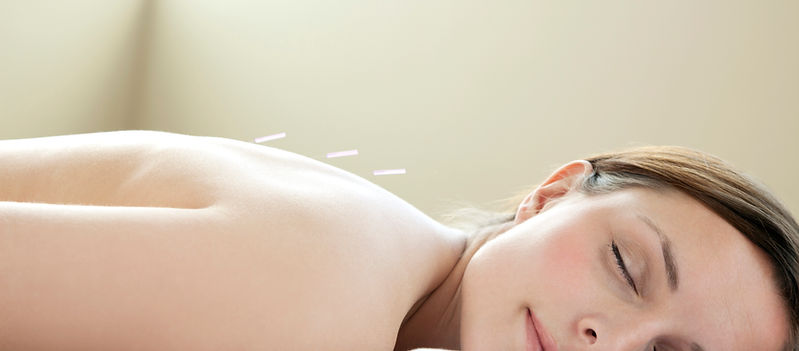 Woman Relaxing Acupuncture Treatment