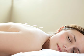 A woman is relaxed during an acupuncture treatment