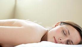 facial rejuvenation acupuncture, acupuncture, cosmetic acupuncture