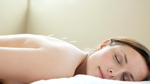 How Does Acupuncture Work? איך דיקור עובד