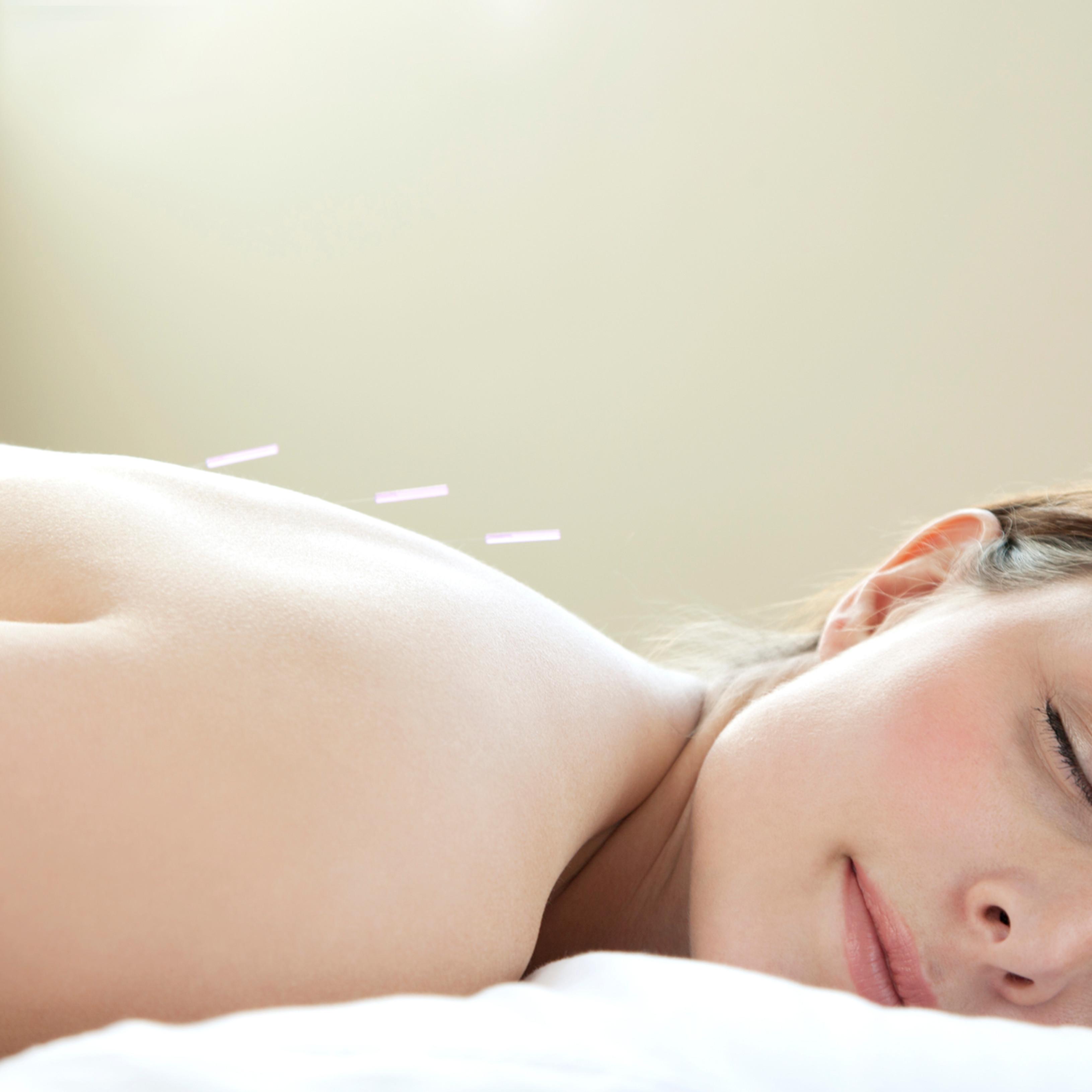 Akupunktur bei Hyperemesis
