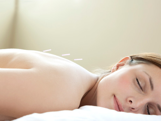 Top 10 Reasons to Get Acupuncture