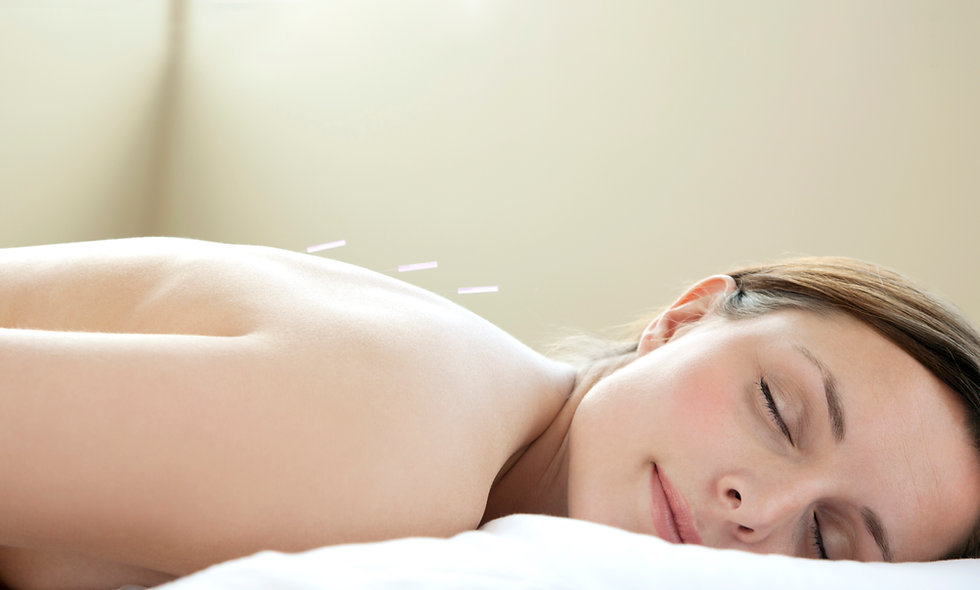 Single Standard Acupuncture Treatment
