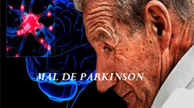 Entenda sobre a Doença de Parkison (DP)