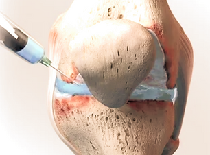 PRP knee injection_edited.png