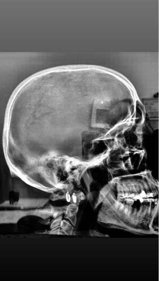 My head