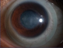 Scleral 6