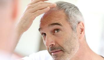 Homme cheveux calvitie
