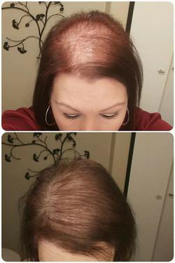 Alopecie_femme