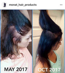 Hypotyroide et Alopecie