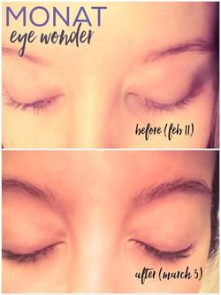 Sérum Eye Wonder Monat