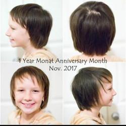 Alopecie resultat 1 an