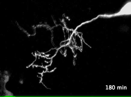 Live imaging of neuronal structure during development