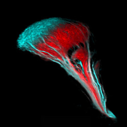 Retinal axon projections to the brain