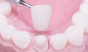 ครอบฟัน dental crown