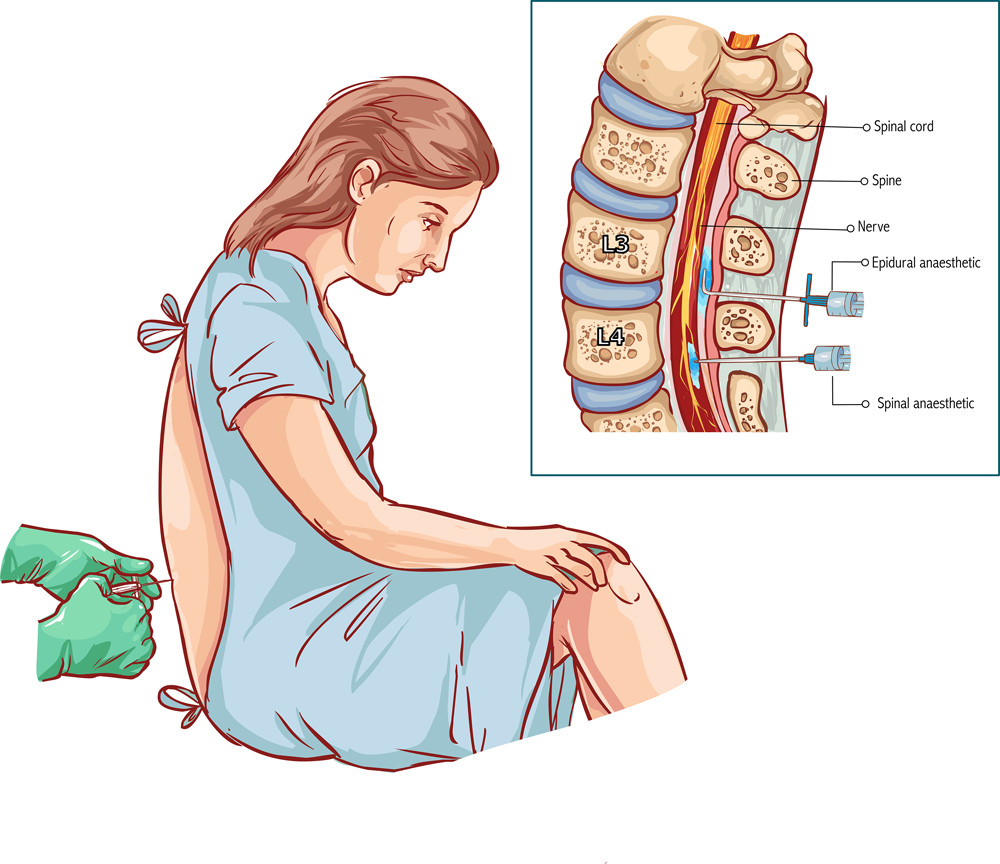 epidural-diagram-for-tradition-and-CSE-walking-epidural-placement-in-spine