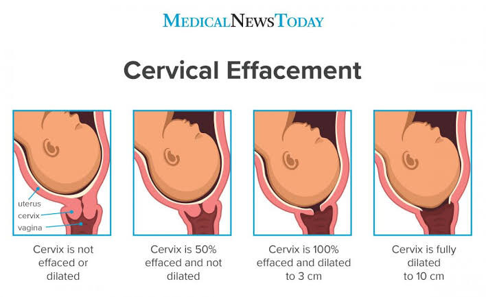 cervical-effacement-is-how-thin-the-cervix-is