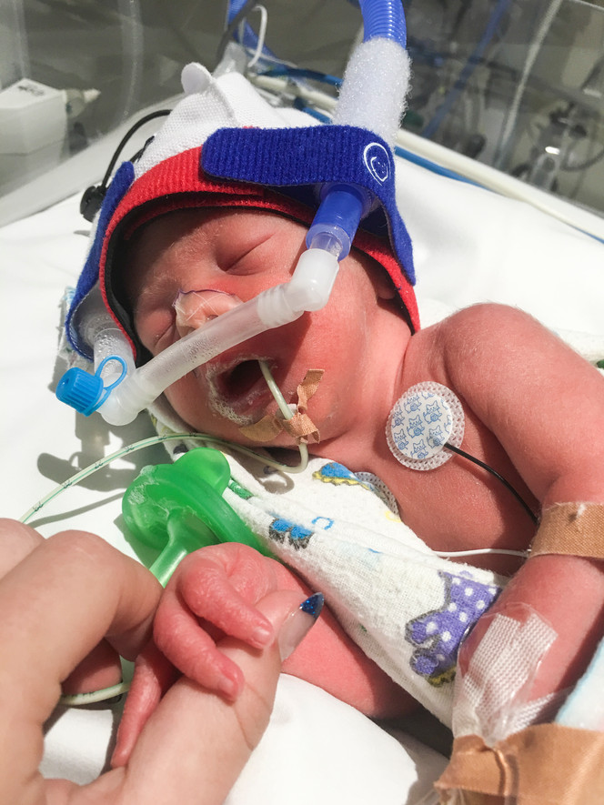 newborn-baby-born-premature-at-32-weeks-at-fiona-stanley-hospital-NICU-connected-to-CPAP-breathing-support-and-ng-tube