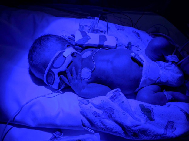 Newborn-boy-born-premature-at-32-weeks-at-fiona-stanley-hospital-NICU-recieving-a-sunbake-light-therapy-for-high-Bilirubin-causing-jaundice