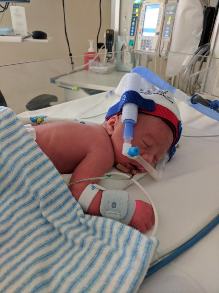 Baby-born-at-32-weeks-in-NICU-with-cpap-breathing-support-Perth-NICU-Premature-Baby-Photographer