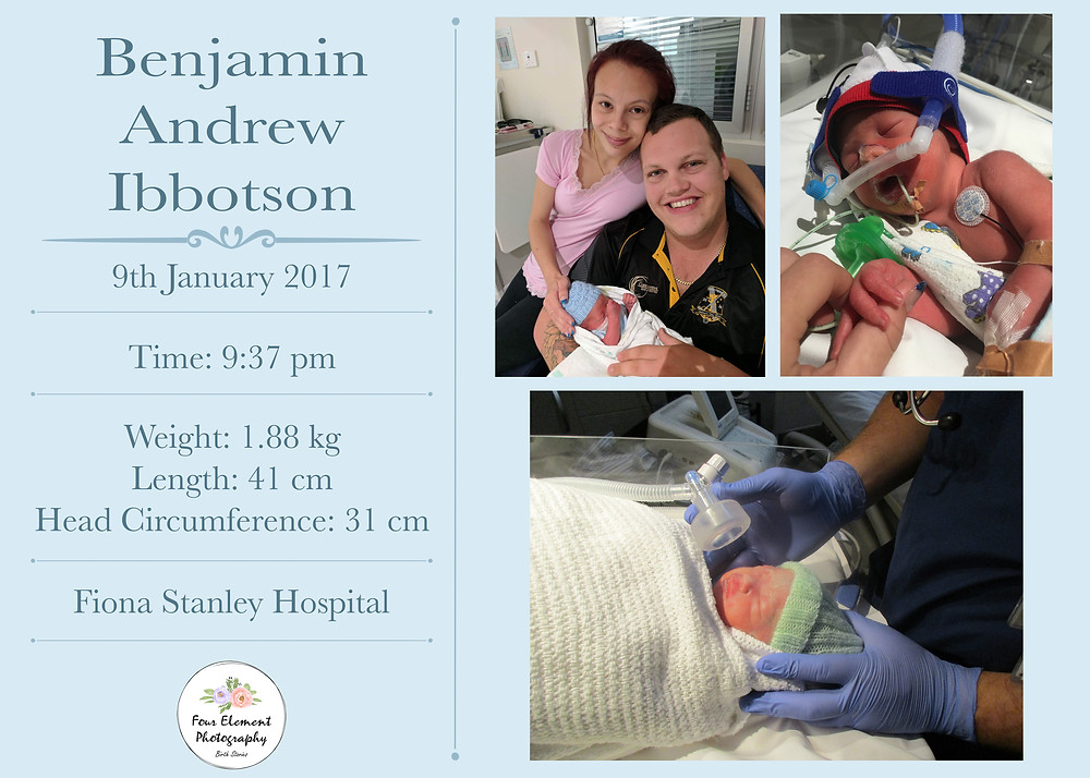 baby-boy-born-at-32-weeks-gestation-premature-birth-assisted-forceps-delivery-at-Fiona-Stanley-Hospital