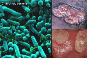 chancharoid-bacteria-rash-presentation-common-in-asia-and-africa-symptoms-and-treatment