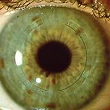 ANILLOS CORNEALES a la vista de oftalmólogo en quito