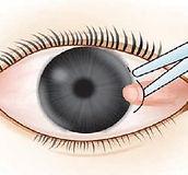 cirugia de pterigion en clinica de los ojos
