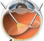Vitrectomia en cirugia de retina por oftalmologo retinologo