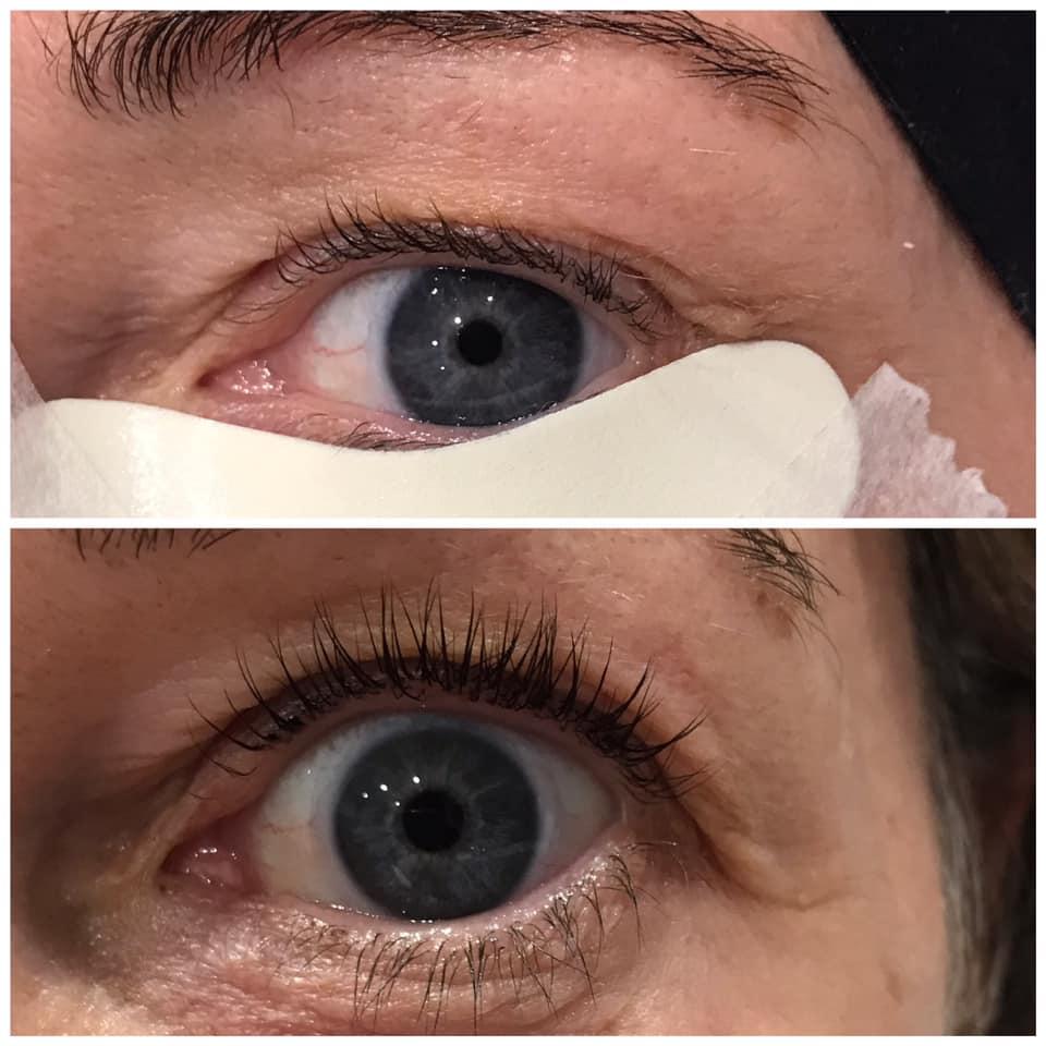 eyelash lift