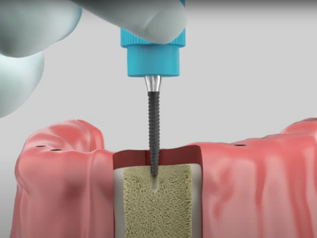 Big satisfaction with a small implant