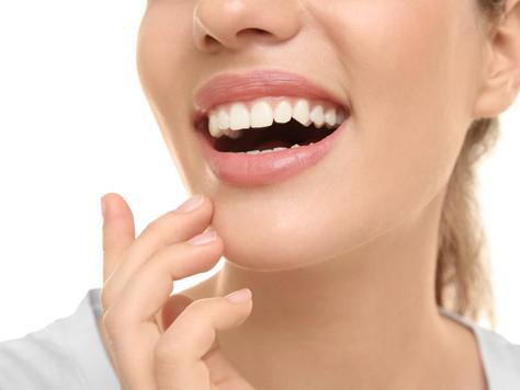 Sheer white teeth