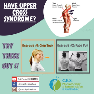 Do you have Upper Cross Syndrome?