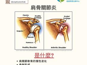 肩膊骨關節炎:文獻概要