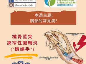 """""""媽媽手""""或橈骨莖突狹窄性腱鞘炎?"""