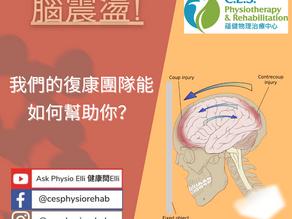 你有腦震盪嗎?我們能怎樣幫助你?