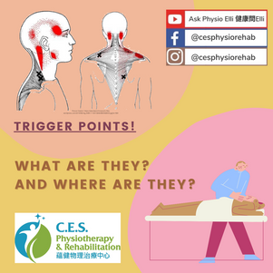 Trigger Points – What Are They?