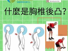 胸椎後凸(圓背)