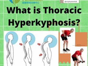 Thoracic Hyperkyphosis (Roundback)