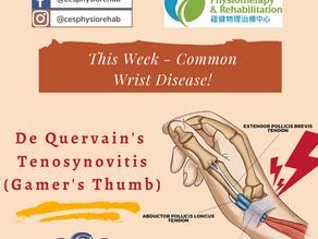 Radial Wrist Pain, or De Quervain's Tenosynovitis?