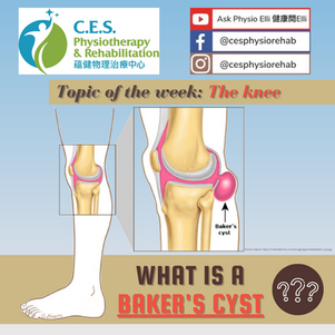 Do You Have Baker's Cyst?