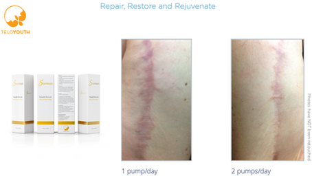 Surgical Skin Scar Rejuvenation