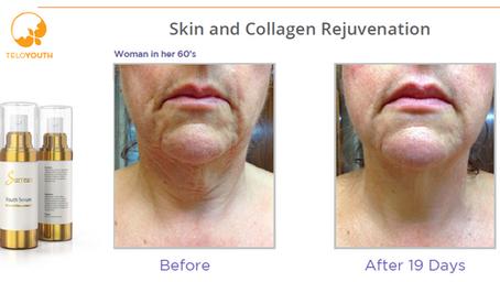 Skin Rejuvenation Face & Neck