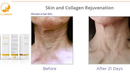 Skin Rejuvenation Neck