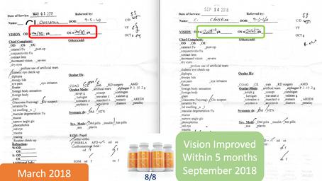 Vision Improvement: Christina C. age 76
