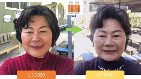Facial Rejuvenation: Wrinkles & Skin Color