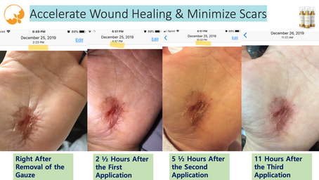 Accelerated Wound (Skin) Healing