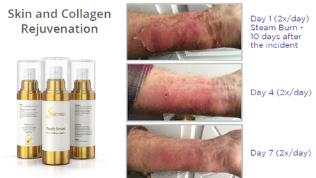 Skin Burn Recovery