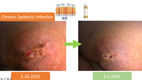 Chronic Systematic Infection Recovery